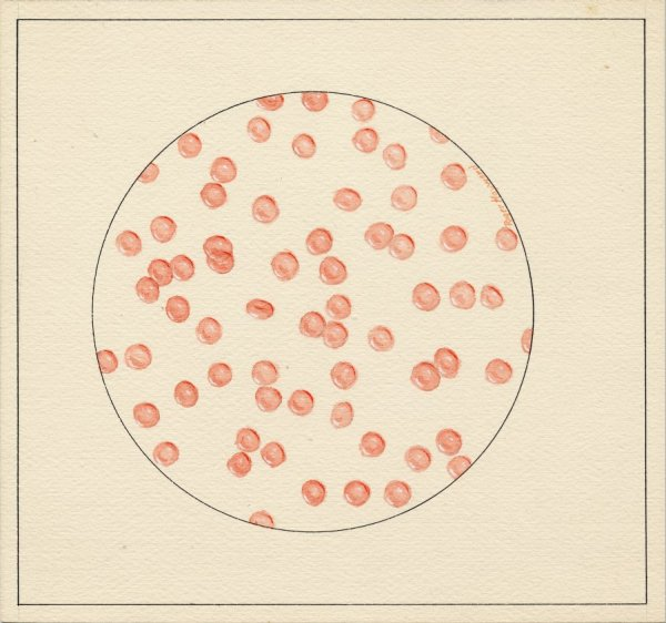 Pastel drawing of normal Hemoglobin cells